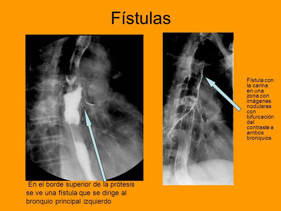 Fístulas Fístula con la carina en una zona con imágenes nodulares con bifurcación del contraste a ambos bronquios En el borde superior de la prótesis