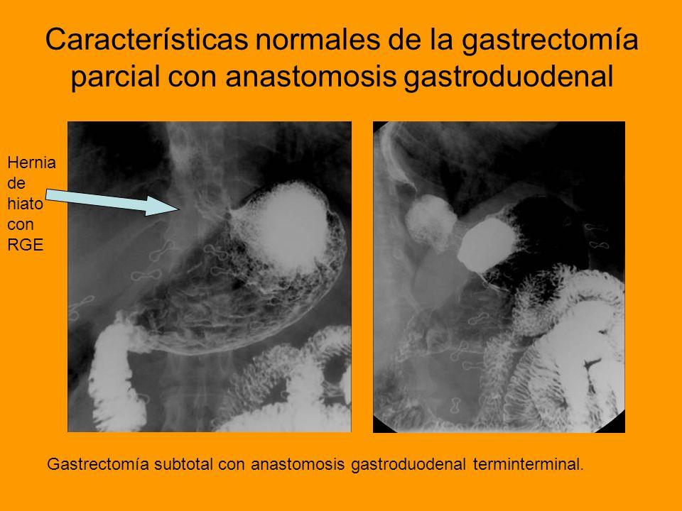 Características normales de la gastrectomía parcial con anastomosis gastroduodenal Gastrectomía subtotal con anastomosis gastroduodenal terminterminal
