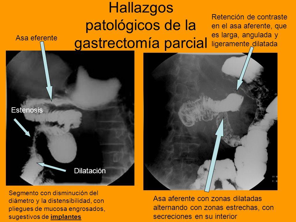 Hallazgos patológicos de la gastrectomía parcial Asa aferente con zonas dilatadas alternando con zonas estrechas, con secreciones en su interior Asa e