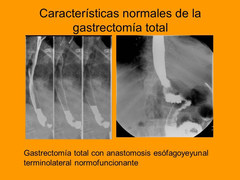 Características normales de la gastrectomía total Gastrectomía total con anastomosis esófagoyeyunal terminolateral normofuncionante