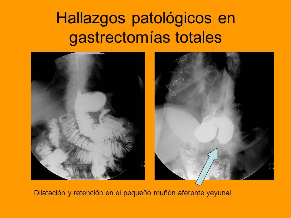 Hallazgos patológicos en gastrectomías totales Fístula tranversal hacia la derecha depequeño tamaño a nivel de la anastomosis