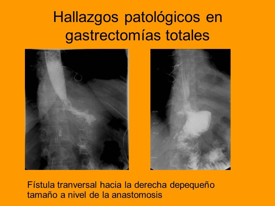 Conclusiones Pese a las técnicas más modernas, el estudio esófago gastroduodenal mantiene su vigencia como una herramienta inestimable para la valoración del tracto gastrointestinal operado, dado su escaso coste, la inocuidad de la técnica y los diagnósticos precisos que se obtienen.