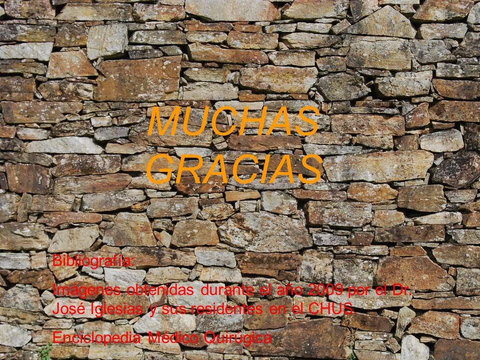 Bibliografía: Imágenes obtenidas durante el año 2009 por el Dr. José Iglesias y sus residentes en el CHUS. Enciclopedia Médico Quirúgica MUCHAS GRACIA
