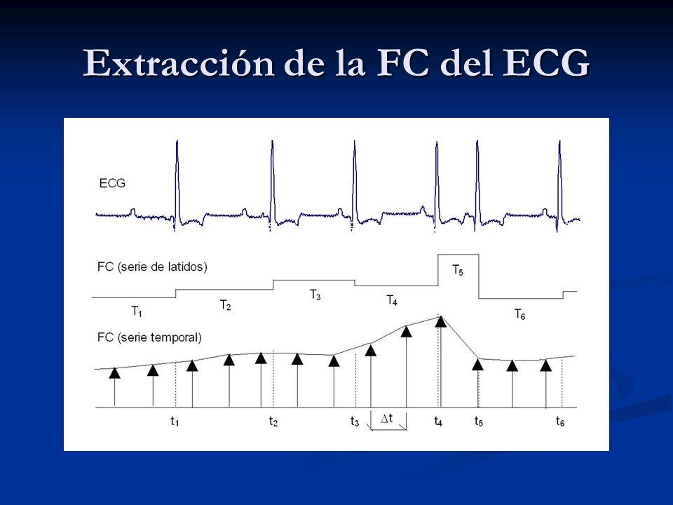 Extracción de la FC del ECG