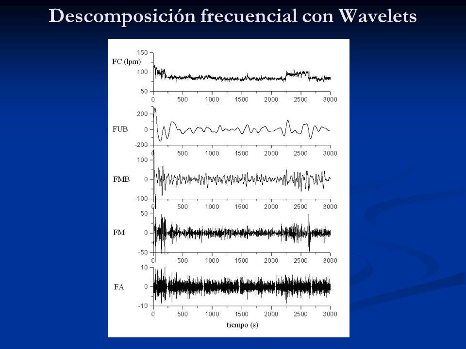 Descomposición frecuencial con Wavelets