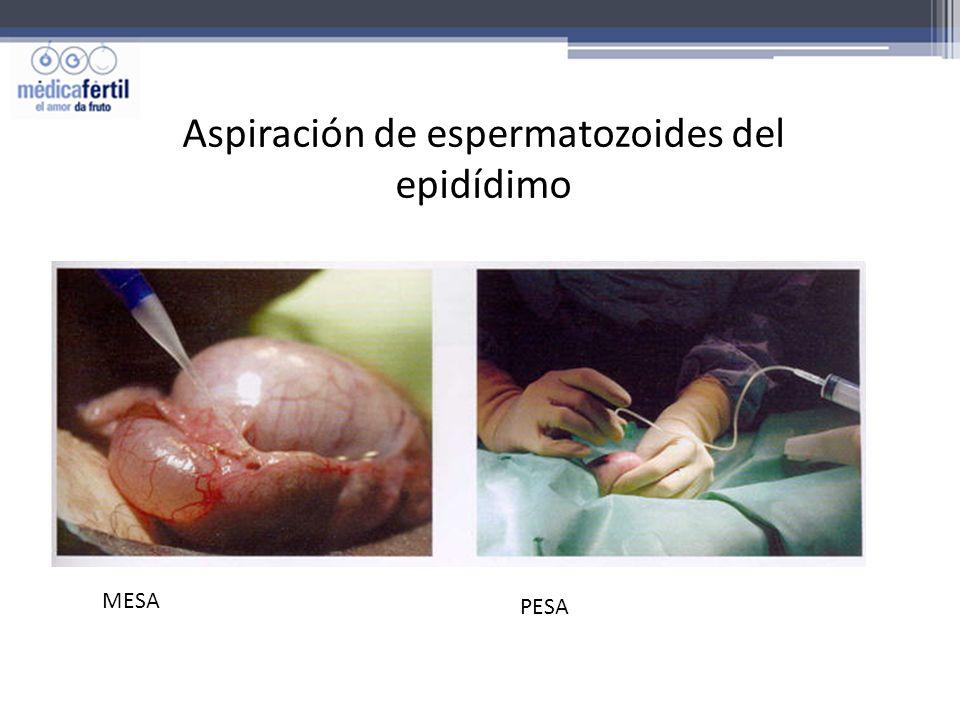 Aspiración de espermatozoides del epidídimo MESA PESA