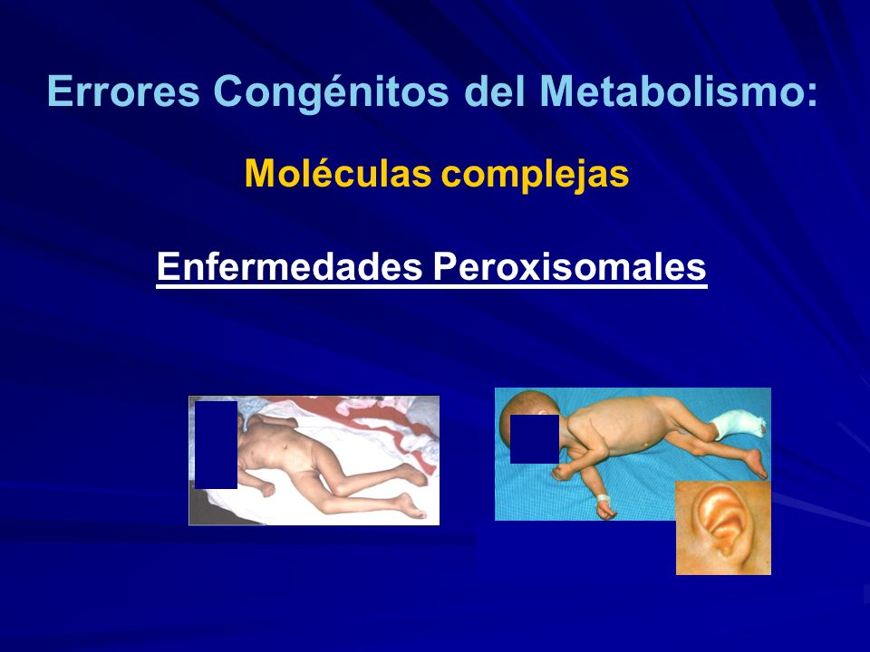 Errores Congénitos del Metabolismo: Moléculas complejas Enfermedades Peroxisomales