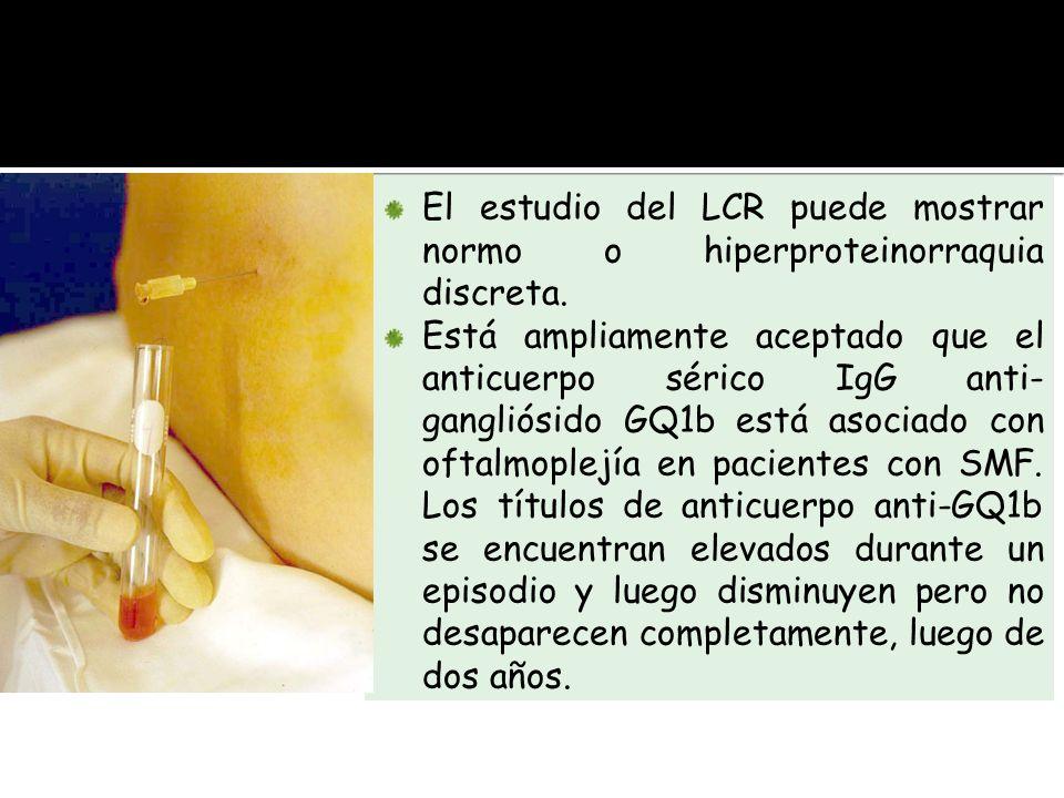 El estudio del LCR puede mostrar normo o hiperproteinorraquia discreta. Está ampliamente aceptado que el anticuerpo sérico IgG anti- gangliósido GQ1b