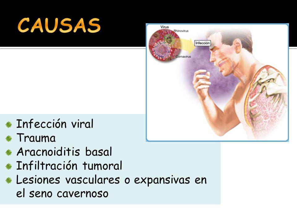 Infección viral Trauma Aracnoiditis basal Infiltración tumoral Lesiones vasculares o expansivas en el seno cavernoso