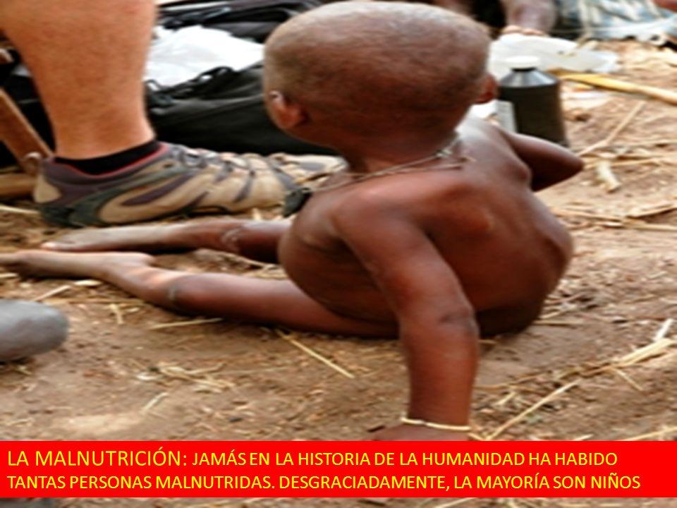 LA MALNUTRICIÓN: JAMÁS EN LA HISTORIA DE LA HUMANIDAD HA HABIDO TANTAS PERSONAS MALNUTRIDAS. DESGRACIADAMENTE, LA MAYORÍA SON NIÑOS