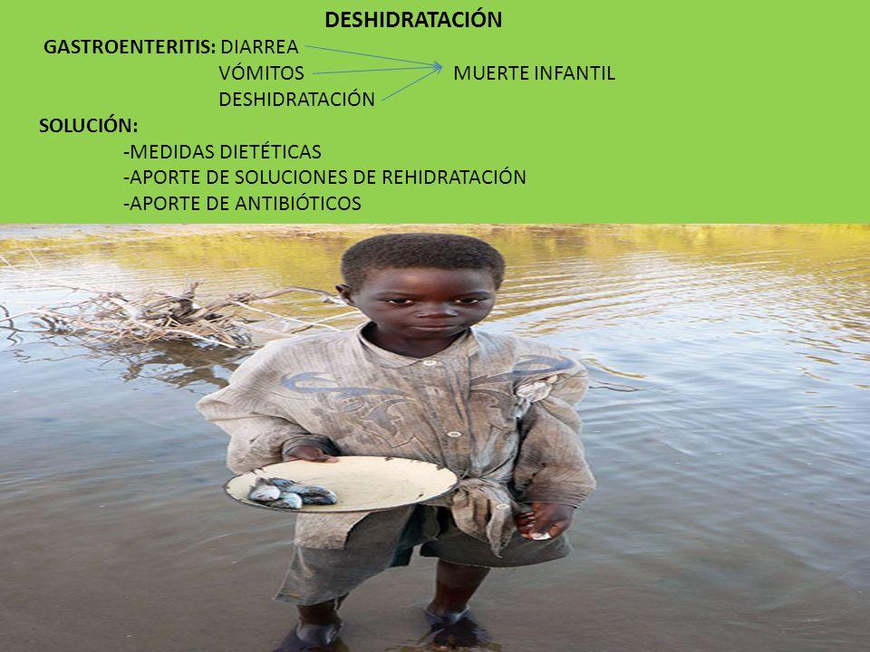 DESHIDRATACIÓN GASTROENTERITIS: DIARREA VÓMITOS MUERTE INFANTIL DESHIDRATACIÓN SOLUCIÓN: -MEDIDAS DIETÉTICAS -APORTE DE SOLUCIONES DE REHIDRATACIÓN -A