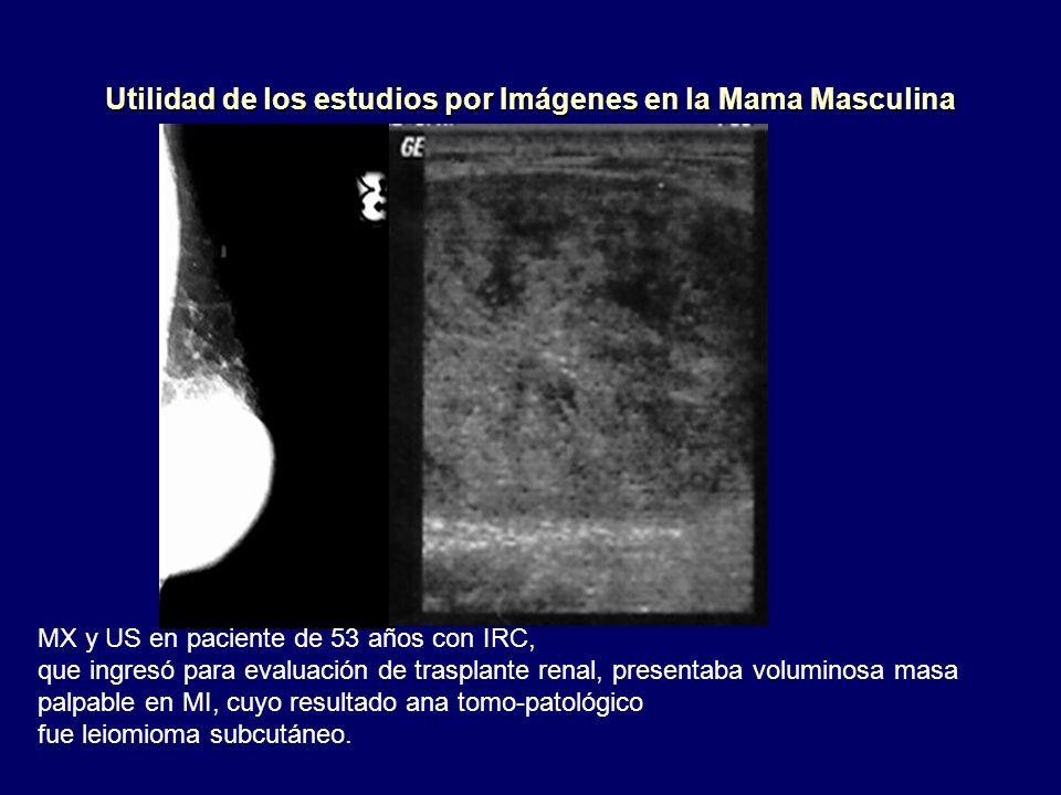 Utilidad de los estudios por Imágenes en la Mama Masculina MX y US en paciente de 53 años con IRC, que ingresó para evaluación de trasplante renal, pr