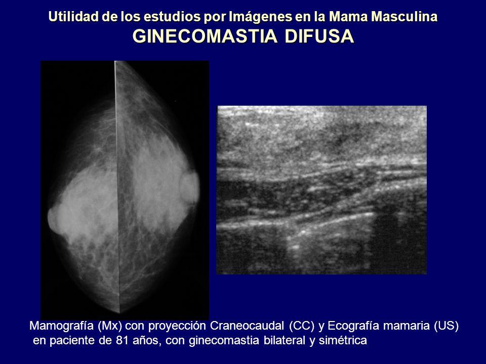 Utilidad de los estudios por Imágenes en la Mama Masculina GINECOMASTIA DIFUSA Mamografía (Mx) con proyección Craneocaudal (CC) y Ecografía mamaria (U