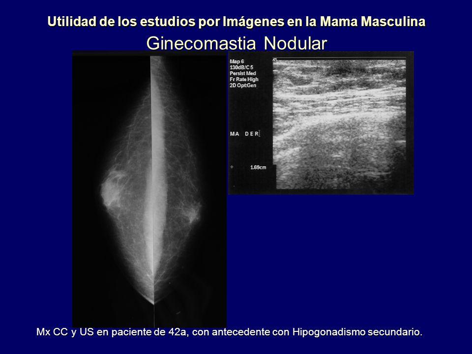 Utilidad de los estudios por Imágenes en la Mama Masculina Ginecomastia Nodular Mx CC y US en paciente de 42a, con antecedente con Hipogonadismo secun