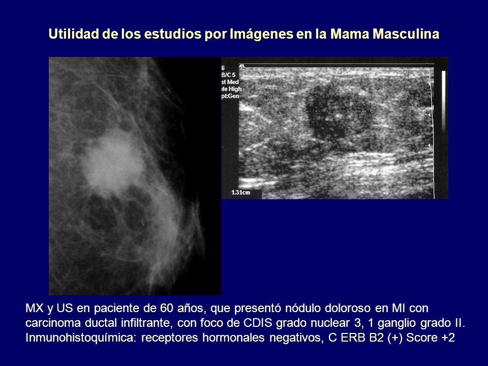 Utilidad de los estudios por Imágenes en la Mama Masculina MX y US en paciente de 60 años, que presentó nódulo doloroso en MI MX y US en paciente de 6