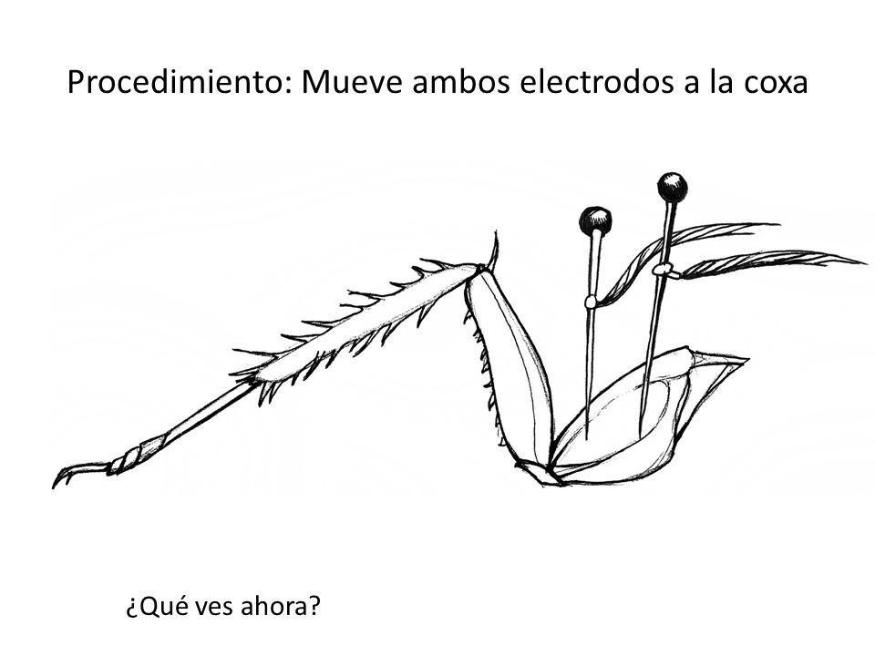 Procedimiento: Mueve ambos electrodos a la coxa ¿Qué ves ahora?