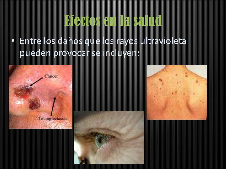Efectos en la salud Entre los daños que los rayos ultravioleta pueden provocar se incluyen: