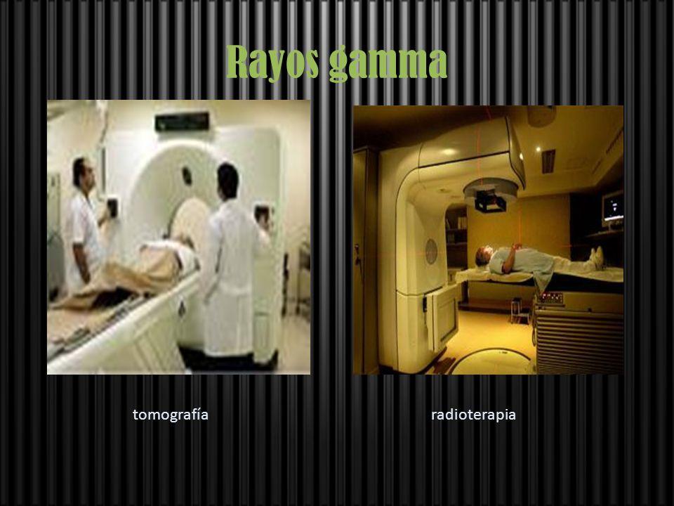 Rayos gamma tomografíaradioterapia