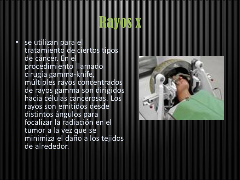Rayos x se utilizan para el tratamiento de ciertos tipos de cáncer. En el procedimiento llamado cirugía gamma-knife, múltiples rayos concentrados de r