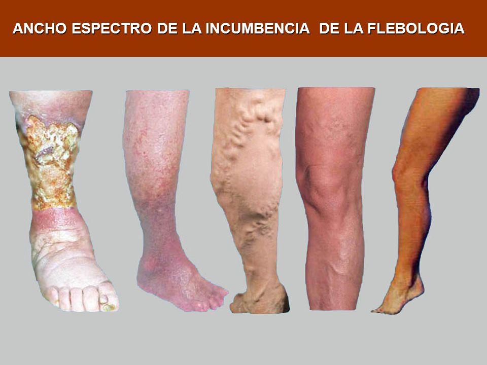 Edema (hinchazón) MANIFESTACIONES CLINICAS DE PATOLOGIA VENOSA Dolor Pesadez Prurito (picazón)