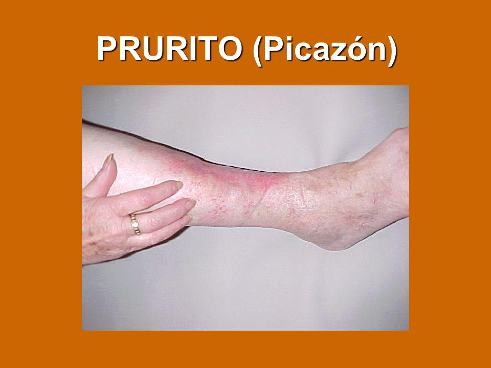 PRURITO (Picazón)