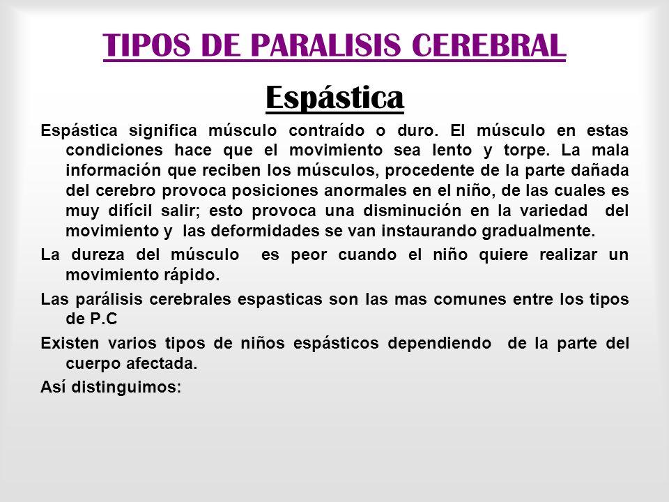 TIPOS DE PARALISIS CEREBRAL Espástica Espástica significa músculo contraído o duro.
