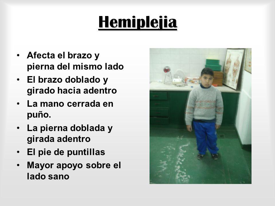 Hemiplejia Afecta el brazo y pierna del mismo lado El brazo doblado y girado hacia adentro La mano cerrada en puño.