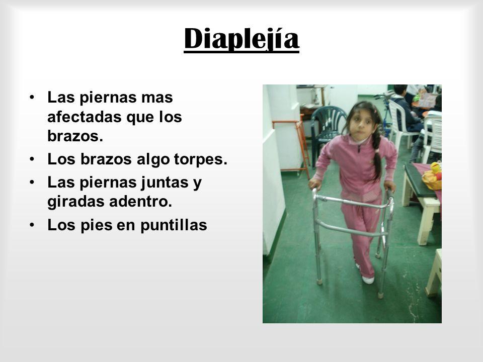 Hemiplejia Afecta el brazo y pierna del mismo lado El brazo doblado y girado hacia adentro La mano cerrada en puño. La pierna doblada y girada adentro