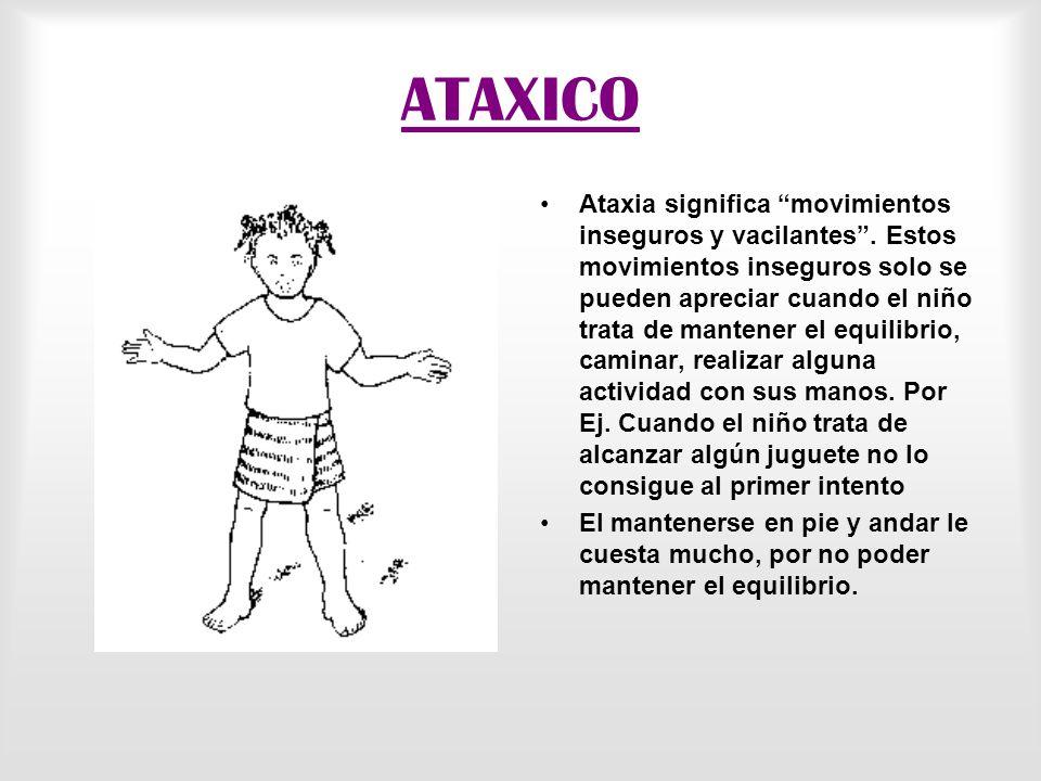 ATETOXICO Atetosis significa movimientos incontrolados. Estos son espasmódicos o lentos y reptantes de las piernas, brazos, manos y cara del niño. Los