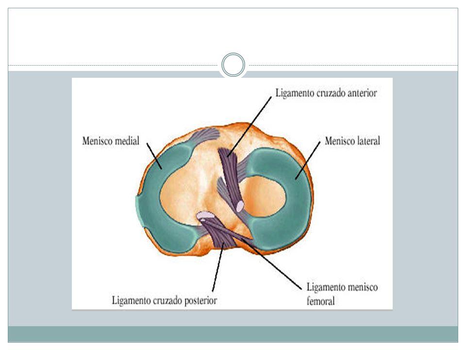 LESIONES DE MENISCOS.MECANISMO : Traumática o degenerativa.