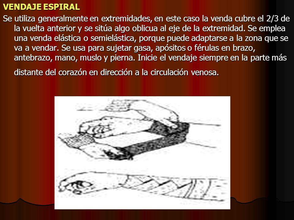 VENDAJE ESPIRAL Se utiliza generalmente en extremidades, en este caso la venda cubre el 2/3 de la vuelta anterior y se sitúa algo oblicua al eje de la