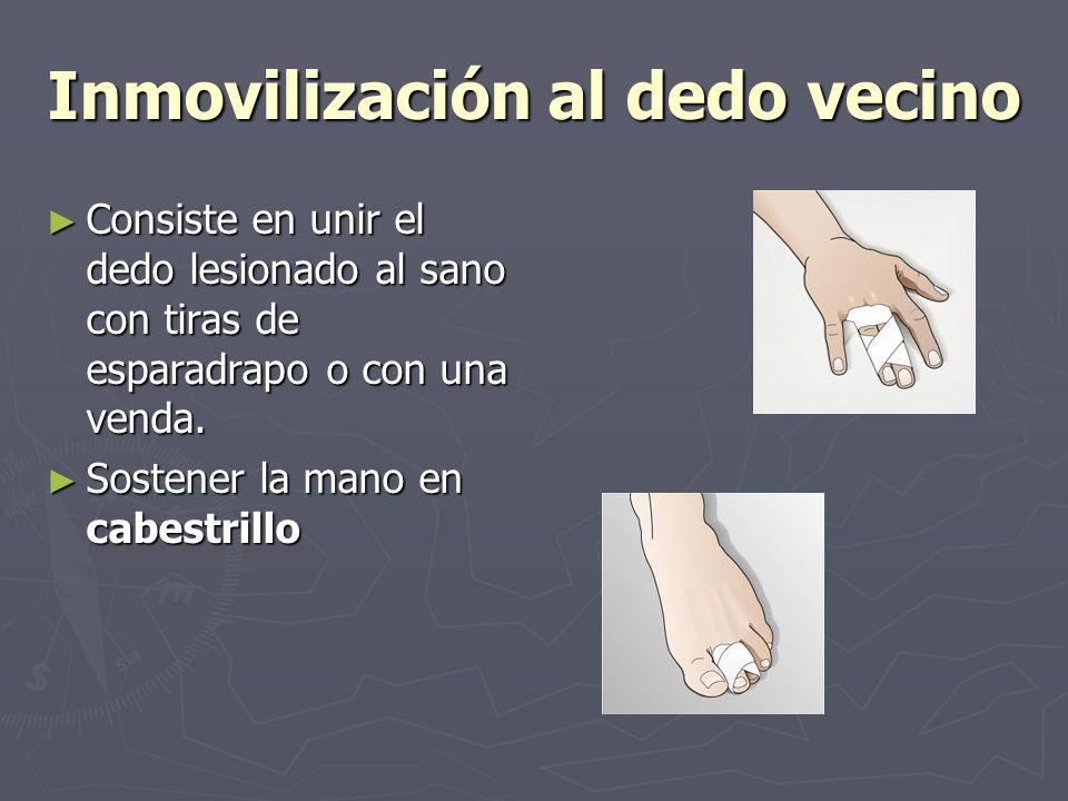 Inmovilización al dedo vecino Consiste en unir el dedo lesionado al sano con tiras de esparadrapo o con una venda. Consiste en unir el dedo lesionado