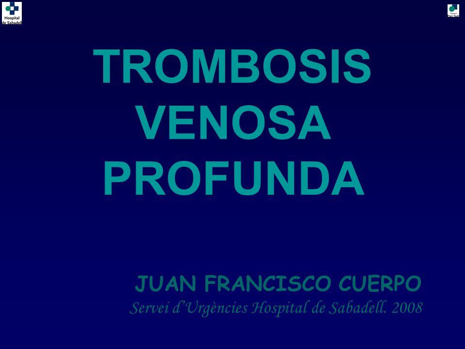 TROMBOSIS VENOSA PROFUNDA JUAN FRANCISCO CUERPO Servei dUrgències Hospital de Sabadell. 2008