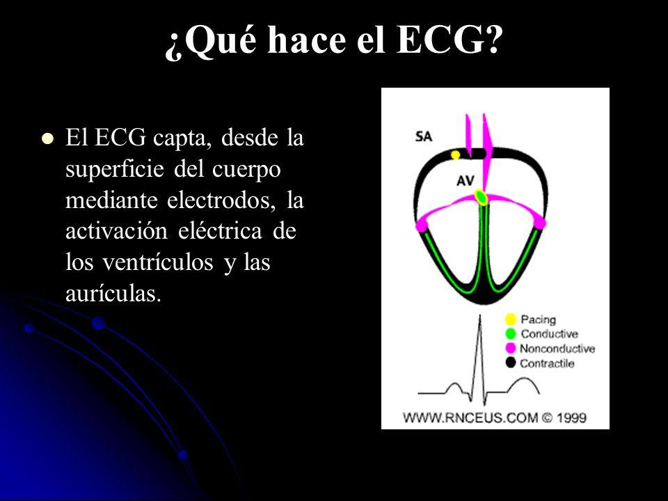 ¿Qué hace el ECG? El ECG capta, desde la superficie del cuerpo mediante electrodos, la activación eléctrica de los ventrículos y las aurículas.