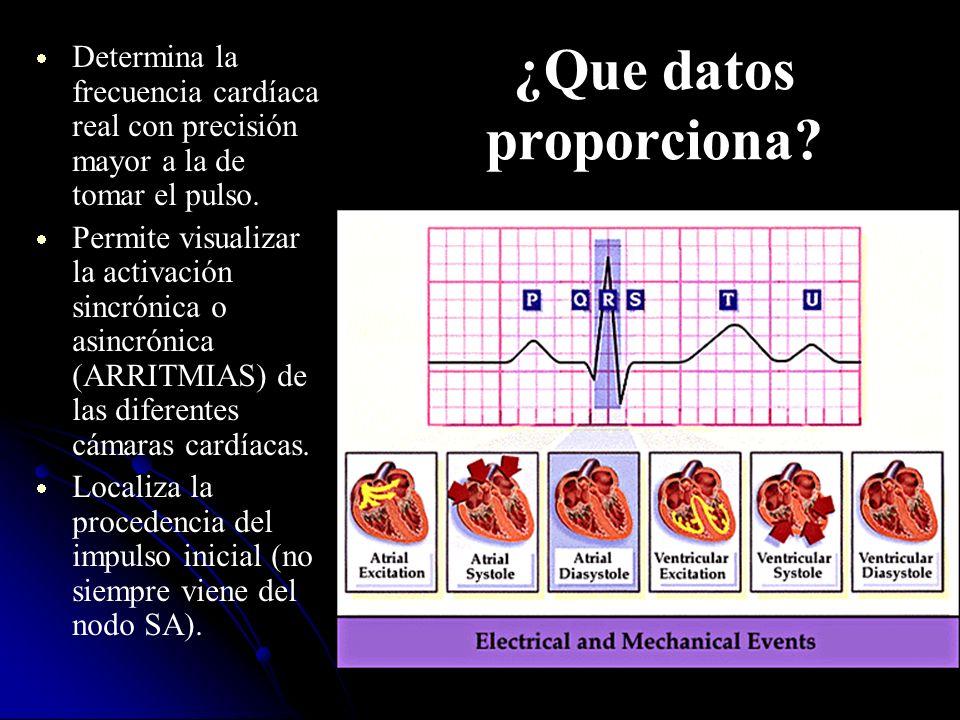 ¿Que datos proporciona? Determina la frecuencia cardíaca real con precisión mayor a la de tomar el pulso. Permite visualizar la activación sincrónica