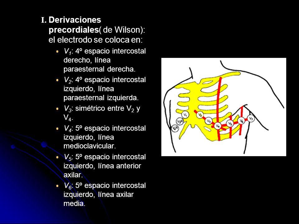 I. Derivaciones precordiales( de Wilson): el electrodo se coloca en: V 1 : 4º espacio intercostal derecho, línea paraesternal derecha. V 2 : 4º espaci