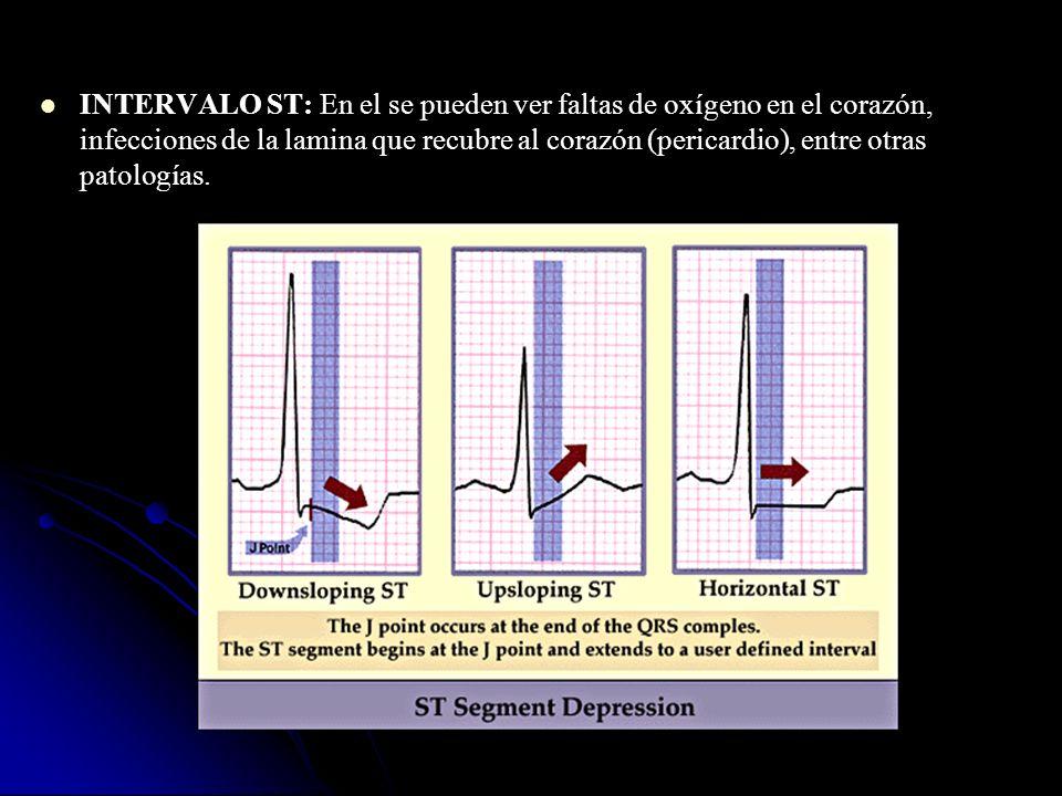 INTERVALO ST: En el se pueden ver faltas de oxígeno en el corazón, infecciones de la lamina que recubre al corazón (pericardio), entre otras patología