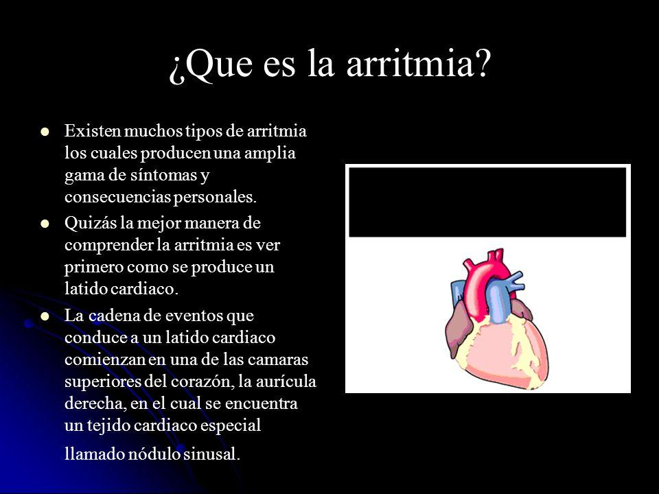 ¿Que es la arritmia? Existen muchos tipos de arritmia los cuales producen una amplia gama de síntomas y consecuencias personales. Quizás la mejor mane