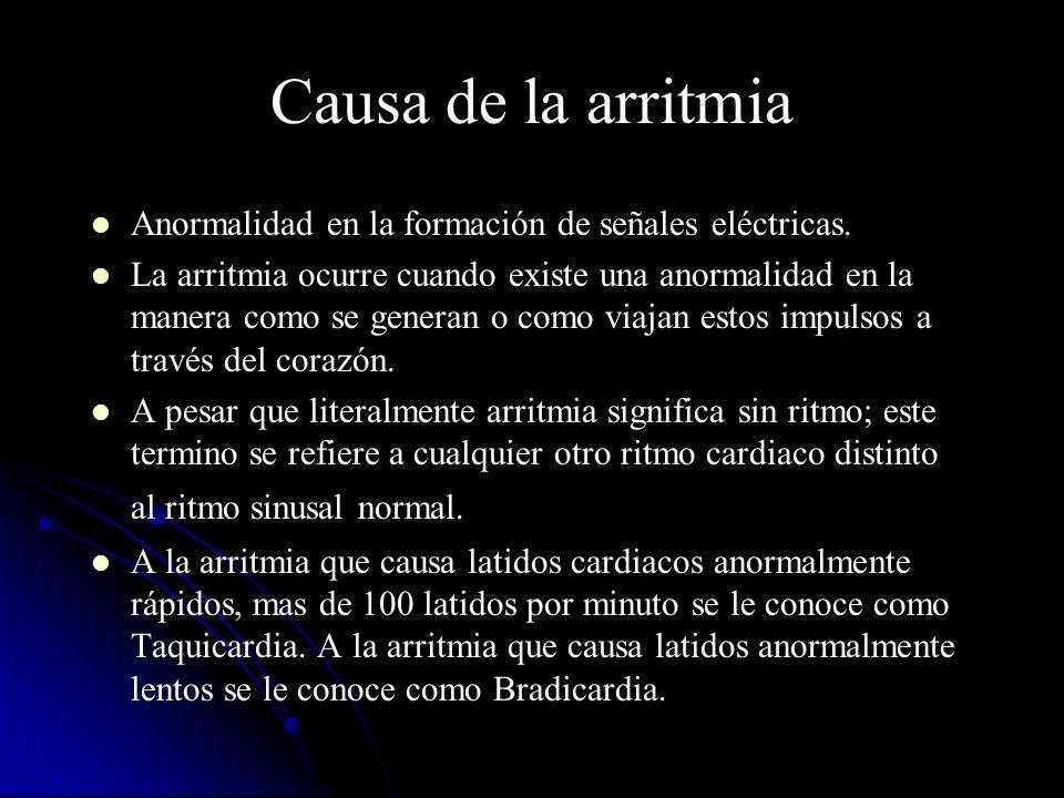 Causa de la arritmia Anormalidad en la formación de señales eléctricas. La arritmia ocurre cuando existe una anormalidad en la manera como se generan