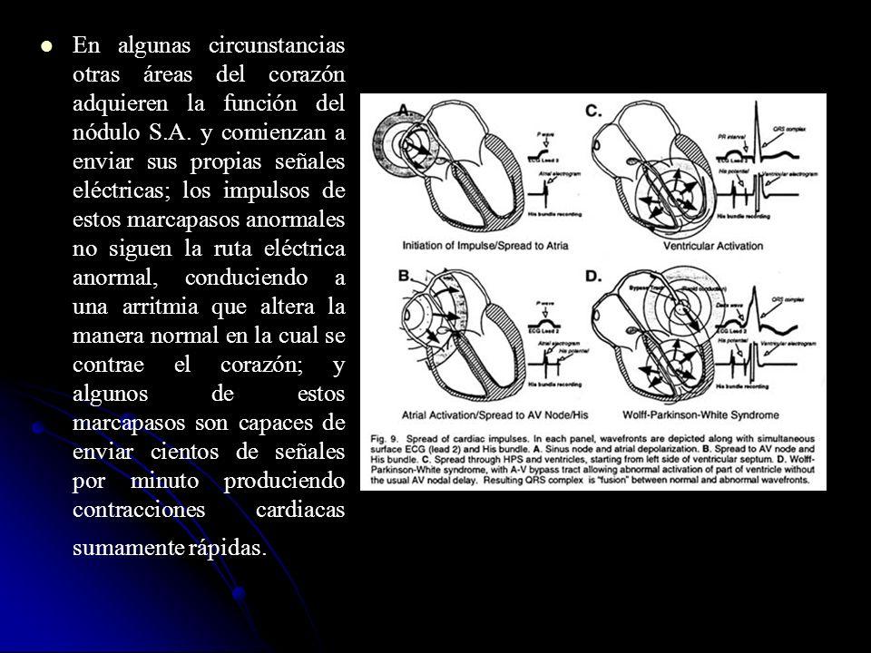 En algunas circunstancias otras áreas del corazón adquieren la función del nódulo S.A. y comienzan a enviar sus propias señales eléctricas; los impuls