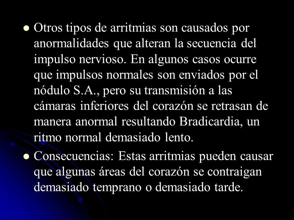 Otros tipos de arritmias son causados por anormalidades que alteran la secuencia del impulso nervioso. En algunos casos ocurre que impulsos normales s