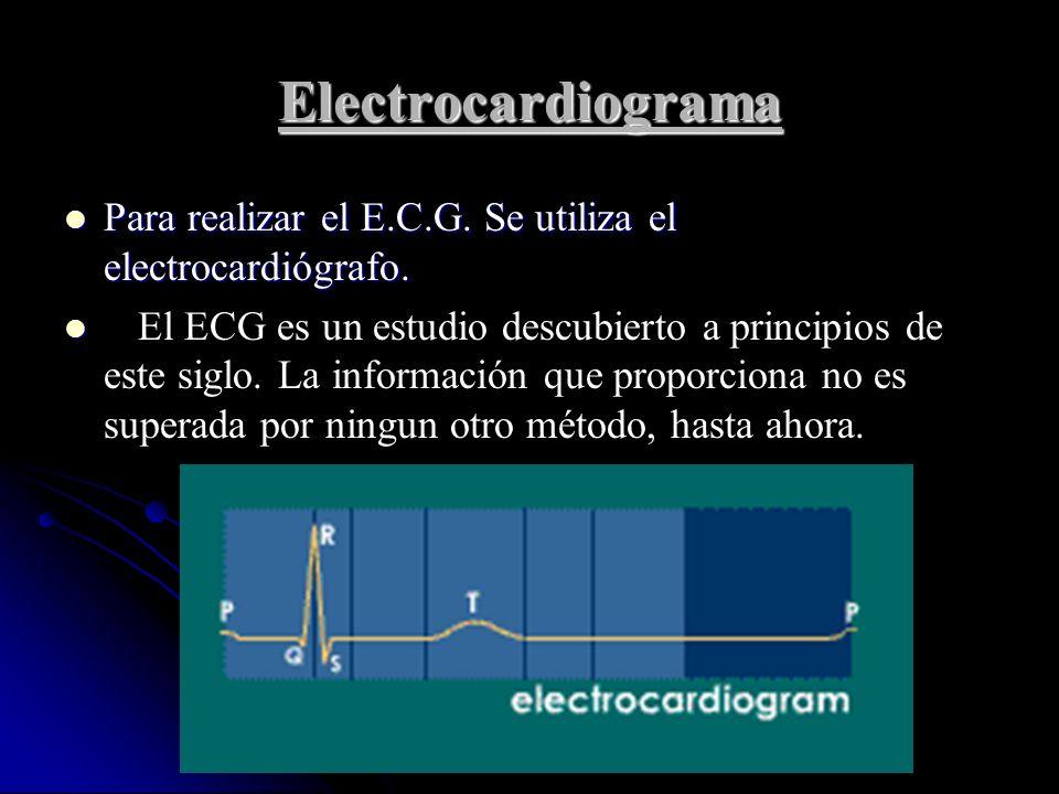 Electrocardiograma Para realizar el E.C.G. Se utiliza el electrocardiógrafo. Para realizar el E.C.G. Se utiliza el electrocardiógrafo. El ECG es un es
