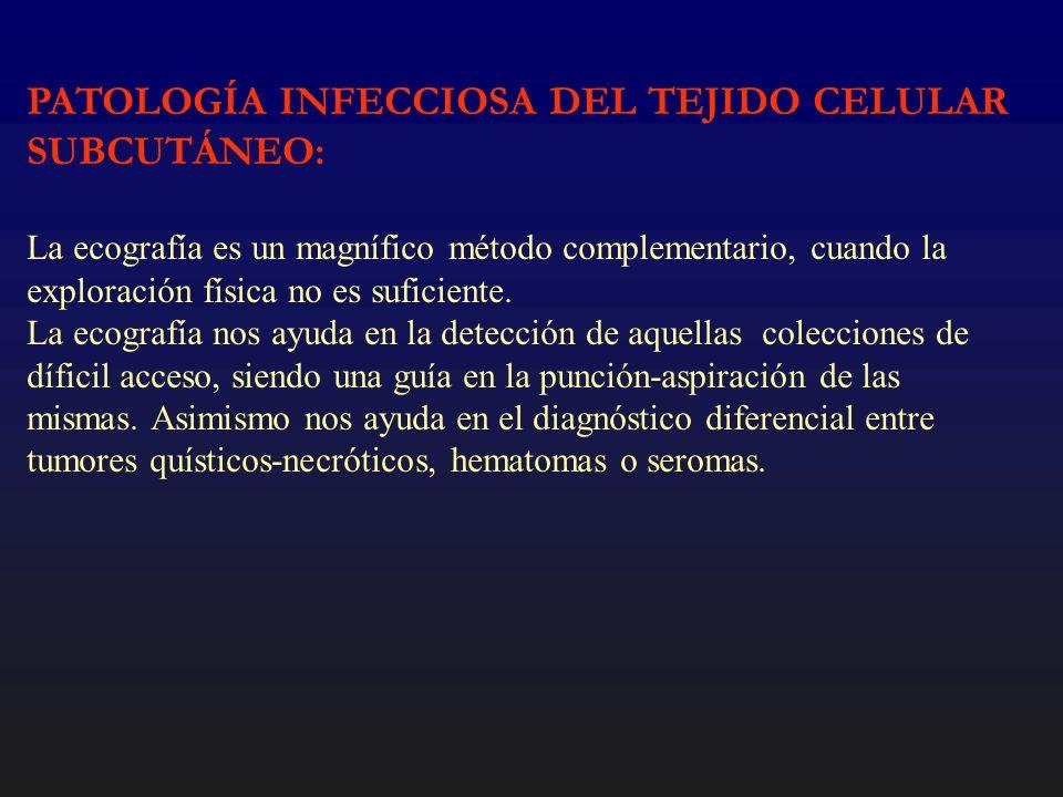 PATOLOGÍA INFECCIOSA DEL TEJIDO CELULAR SUBCUTÁNEO: CELULITIS: Engrosamiento difuso del tejido celular subcutáneo con bandas hiperecogénicas en forma de patrón reticular (tejido conectivo) con o sin edema asociado.