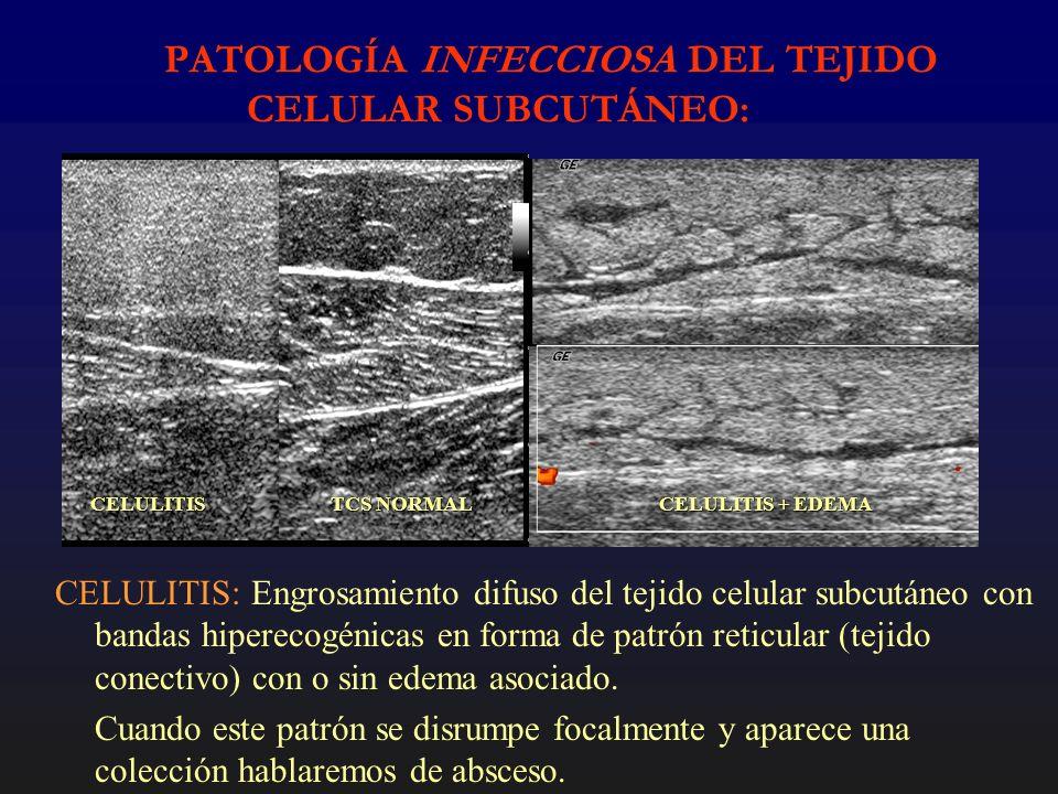 PATOLOGÍA INFECCIOSA DEL TEJIDO CELULAR SUBCUTÁNEO: CELULITIS: Engrosamiento difuso del tejido celular subcutáneo con bandas hiperecogénicas en forma