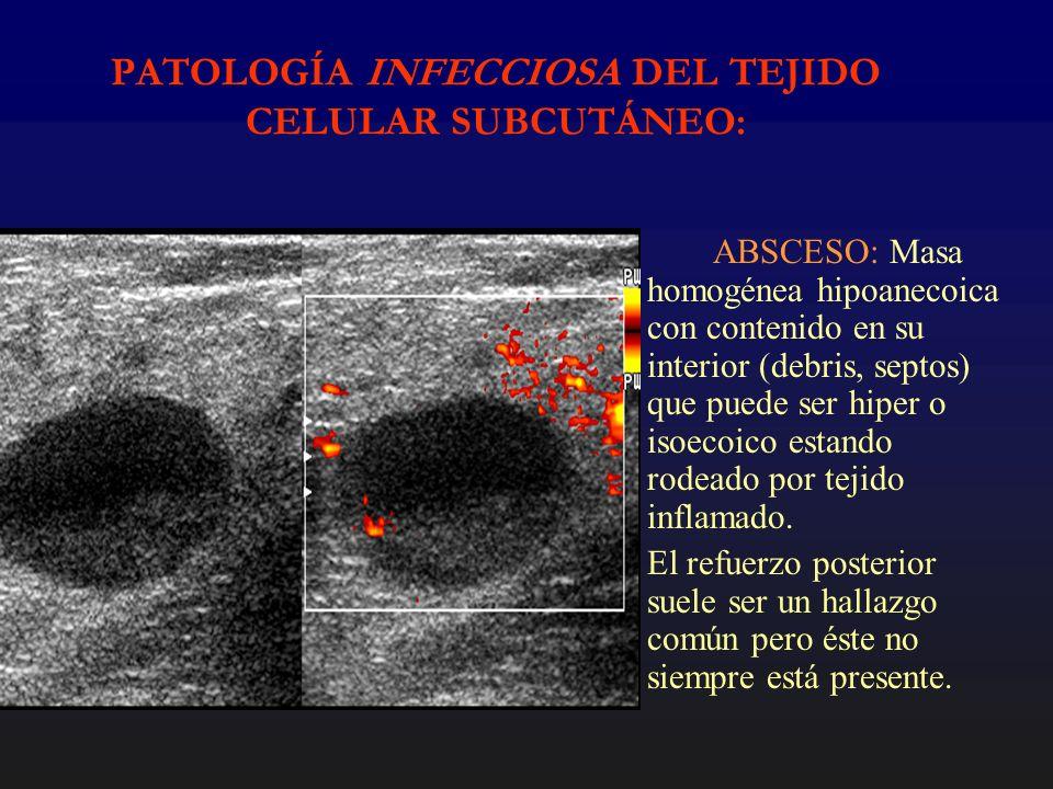 PATOLOGÍA INFECCIOSA DEL TEJIDO CELULAR SUBCUTÁNEO: ABSCESO: Masa homogénea hipoanecoica con contenido en su interior (debris, septos) que puede ser h