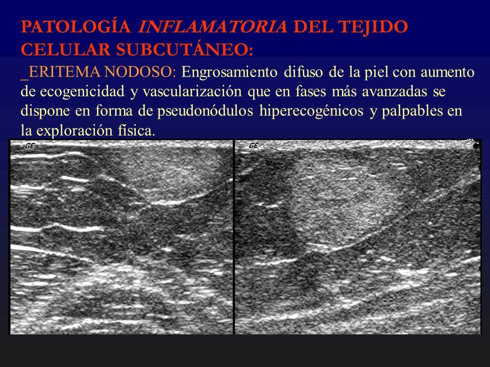 PATOLOGÍA INFLAMATORIA DEL TEJIDO CELULAR SUBCUTÁNEO: _ERITEMA NODOSO: Engrosamiento difuso de la piel con aumento de ecogenicidad y vascularización q