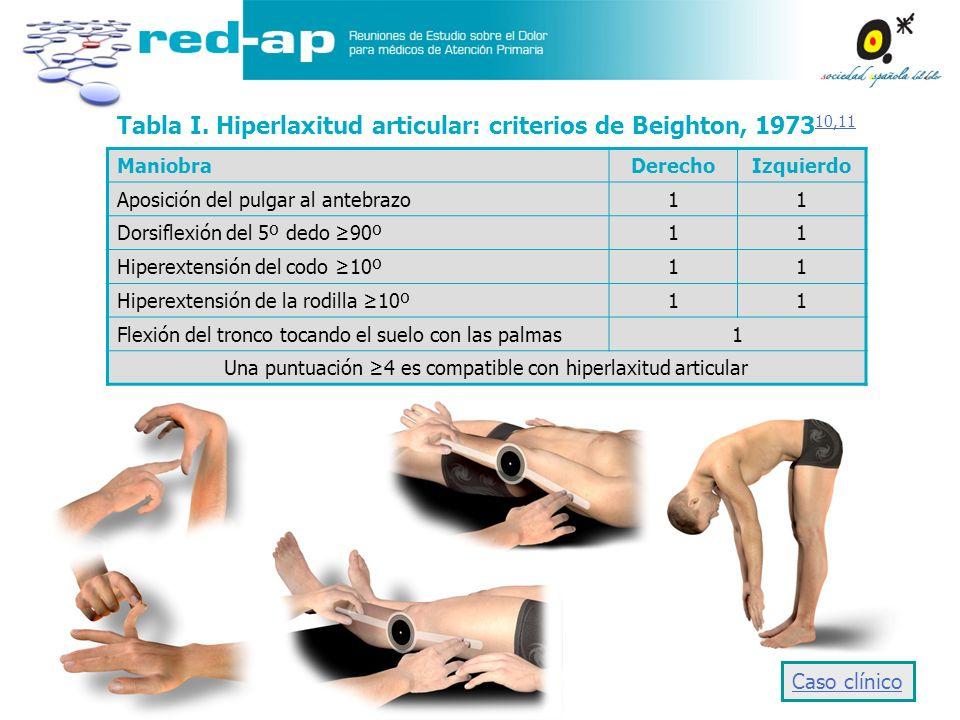 Tabla I. Hiperlaxitud articular: criterios de Beighton, 1973 10,11 10,11 ManiobraDerechoIzquierdo Aposición del pulgar al antebrazo11 Dorsiflexión del