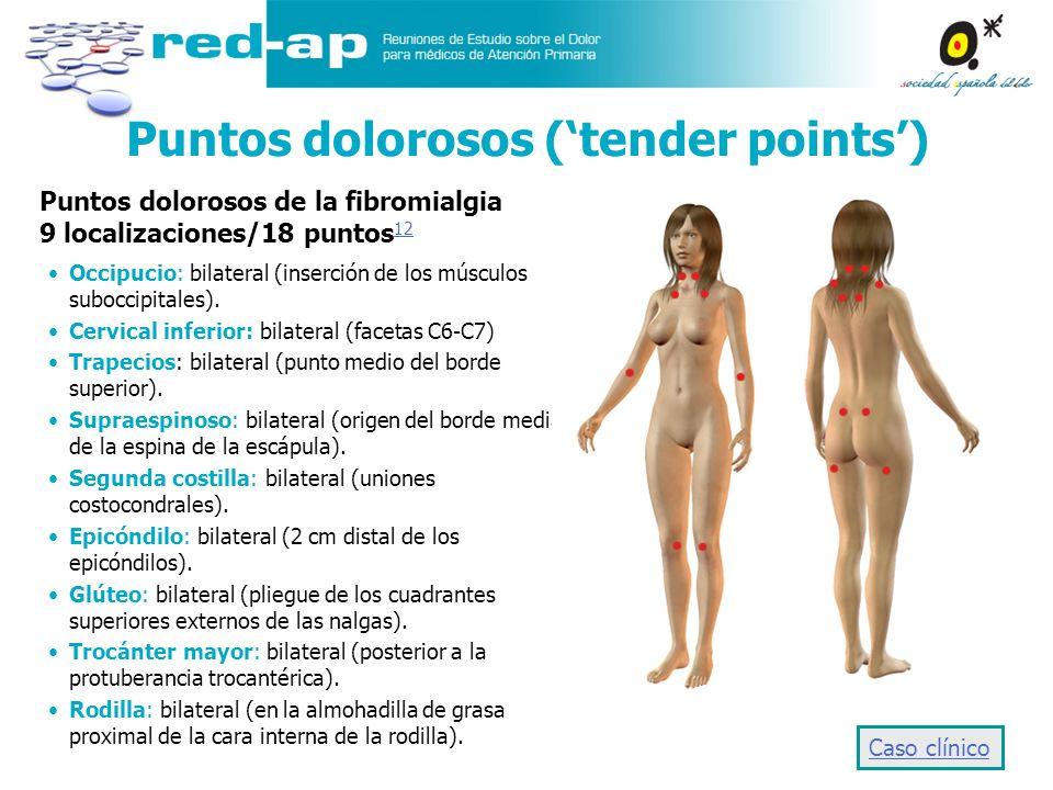 Puntos dolorosos (tender points) Occipucio: bilateral (inserción de los músculos suboccipitales). Cervical inferior: bilateral (facetas C6-C7) Trapeci