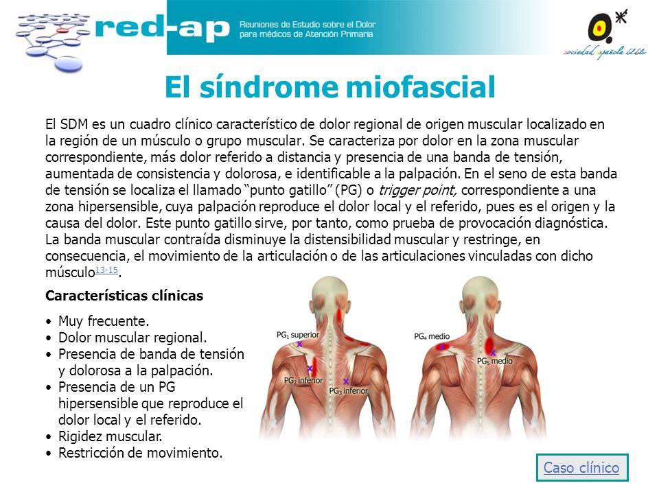 El SDM es un cuadro clínico característico de dolor regional de origen muscular localizado en la región de un músculo o grupo muscular. Se caracteriza