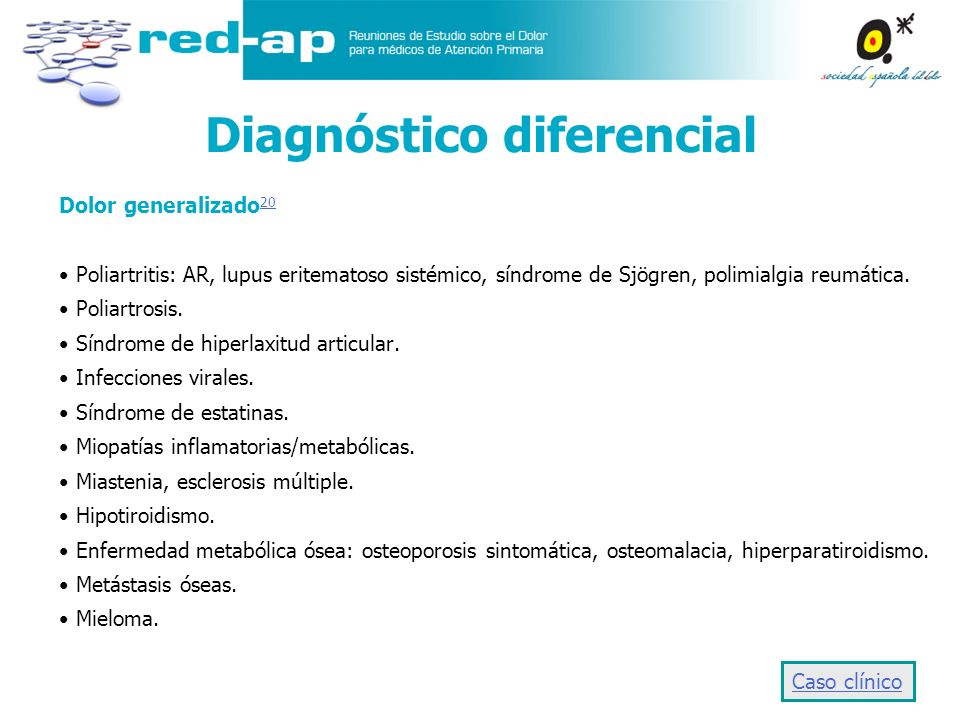 Diagnóstico diferencial Dolor generalizado 20 20 Poliartritis: AR, lupus eritematoso sistémico, síndrome de Sjögren, polimialgia reumática. Poliartros
